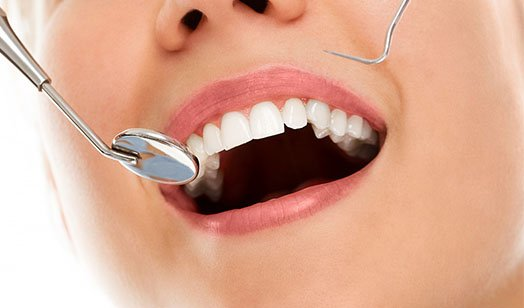 Dental Fillings Melbourne CBD