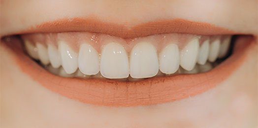 Tooth-Coloured Restorations Melbourne CBD