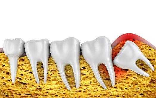 Wisdom Teeth Removal Melbourne CBD