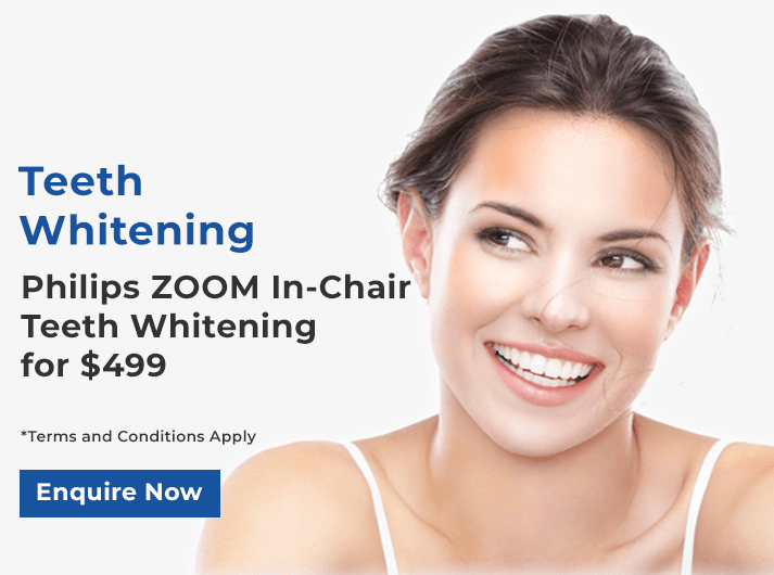 philips zoom in-chair teeth whitening banner melbourne