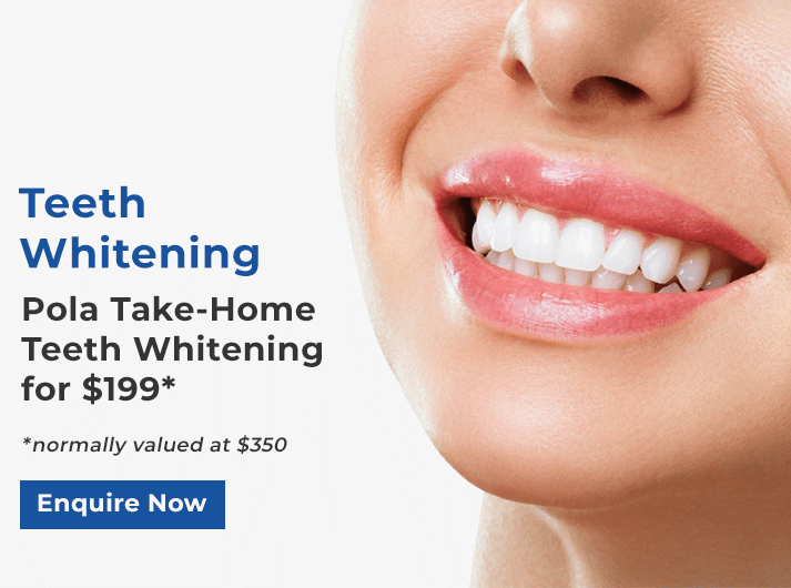 pola teeth whitening banner melbourne cbd