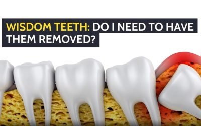 Wisdom Teeth: Do I Need to Have Them Removed?