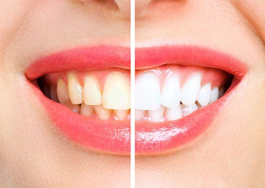 Teeth Whitening Melbourne CBD