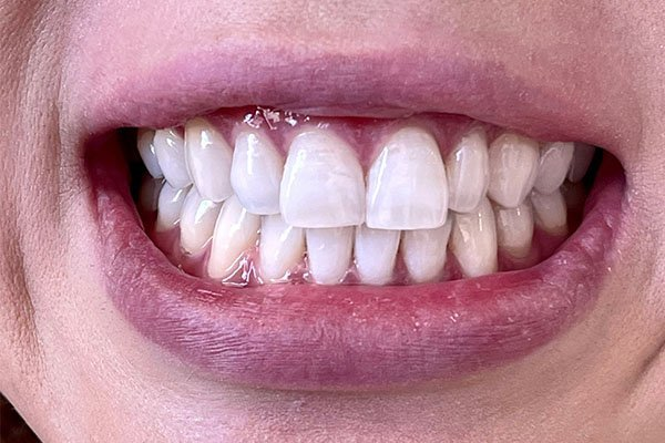 teeth-whitening-after-case-1-melbourne-cbd