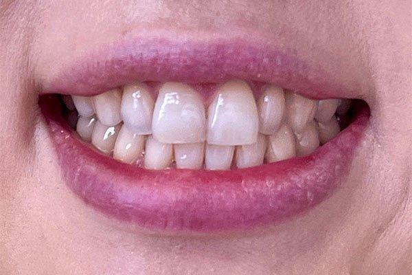 teeth-whitening-before-case-1-melbourne-cbd