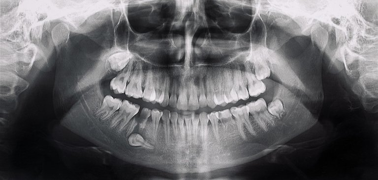 when to get wisdom teeth removal melbourne cbd