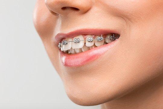 braces blurb melbourne cbd