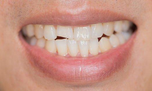 broken tooth management melbourne cbd