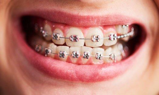 conventional braces blurb melbourne cbd