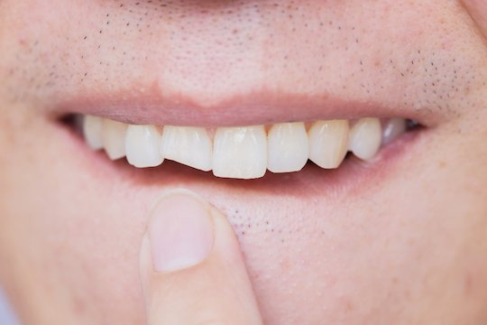 cracked chipped tooth blurb melbourne cbd