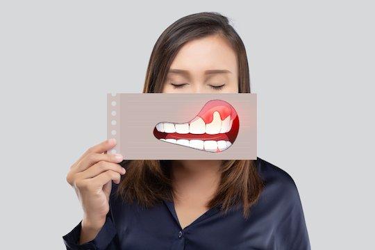 dental abscess blurb melbourne cbd