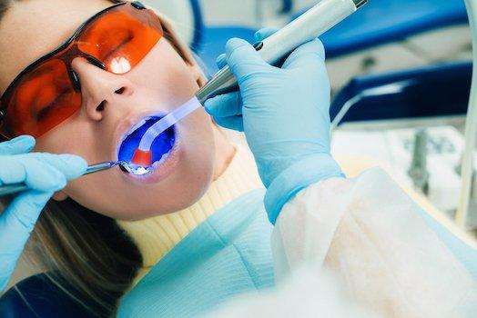 dental bonding material used melbourne cbd