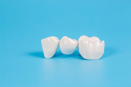 dental bridges blurb melbourne cbd