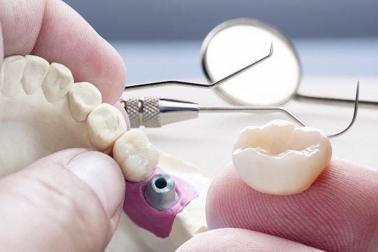 dental crowns blurb melbourne cbd