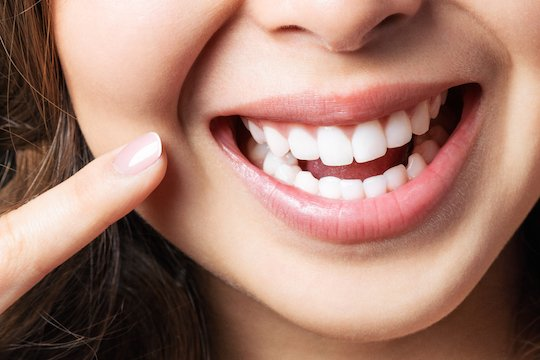 teeth whitening blurb melbourne cbd