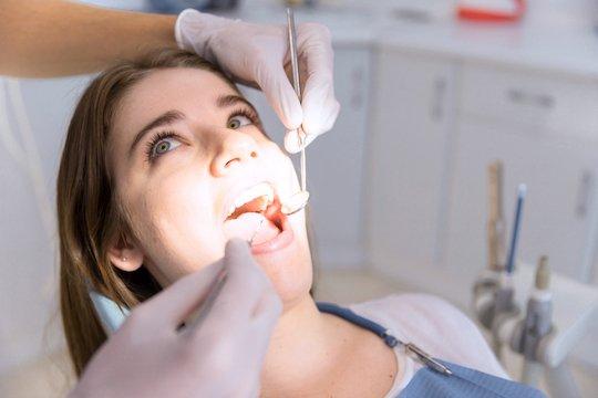 tooth fillings blurb melbourne cbd