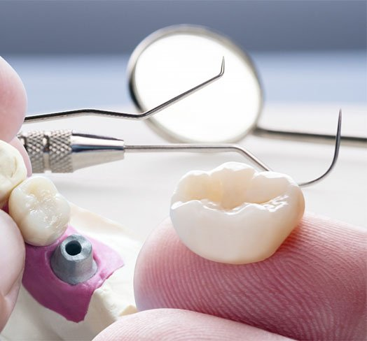 what to do in case of lost and damaged dental restorations